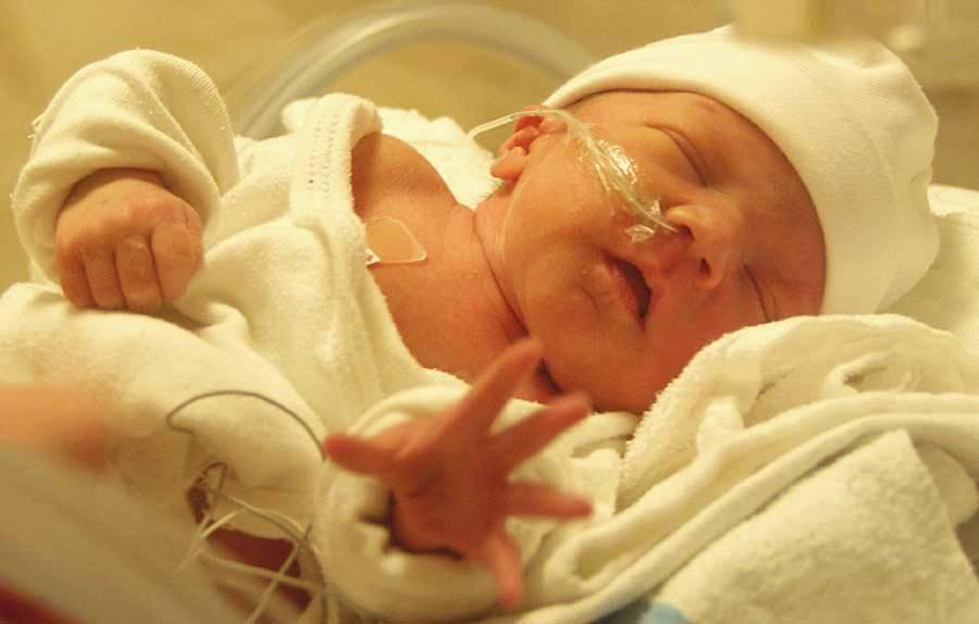 Шкала Апгар для новорожденных