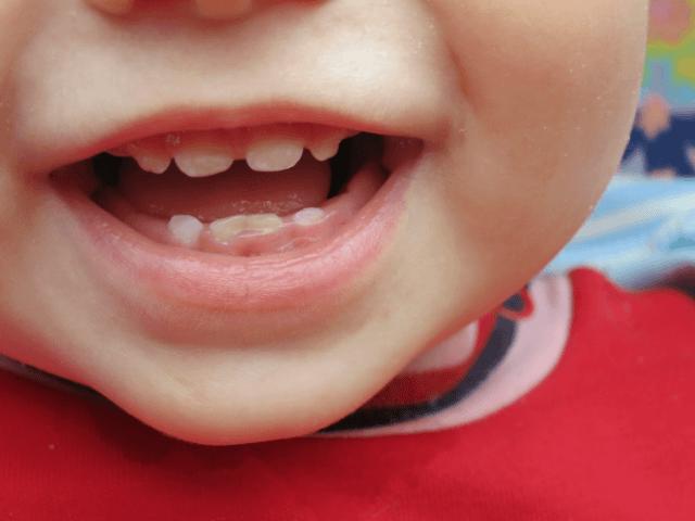 Восемь зубов в год