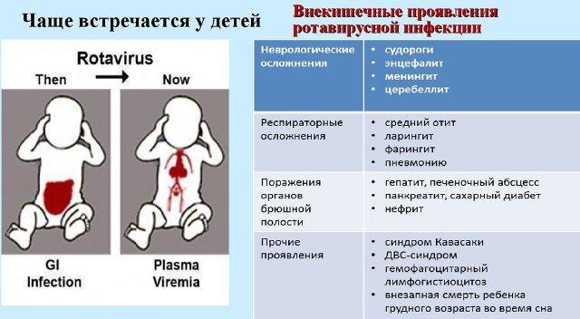 проявления ротавирусной инфекции